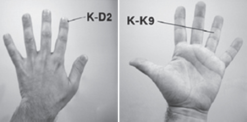 Figure 1: The locations of the K-K9 and the K-D2 acupoints